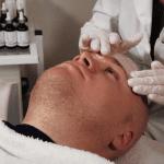 acnetherapie