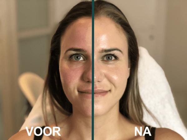 Lycogel voor en na met camouflage therapie
