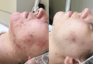 resultaat acne therapie ervaring Romy